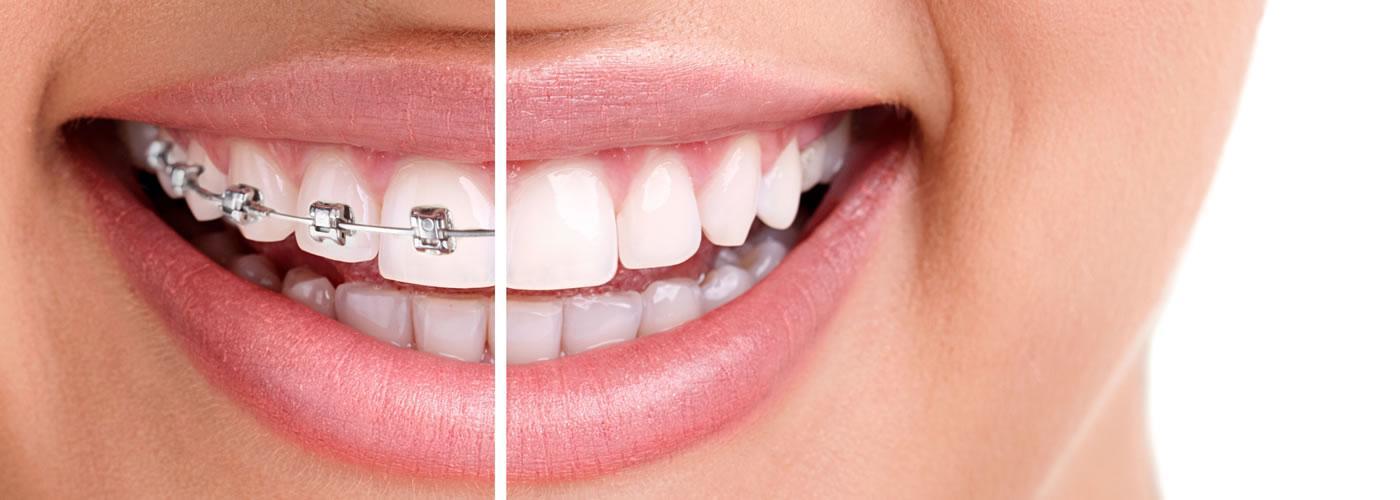 Centre Dental Cise - Figueres | Ortodòncia Invisible