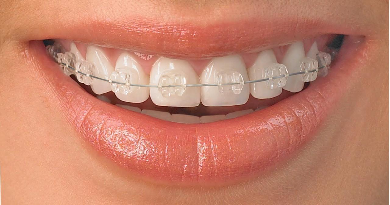 Ortodòncia | Centre Dental Cise