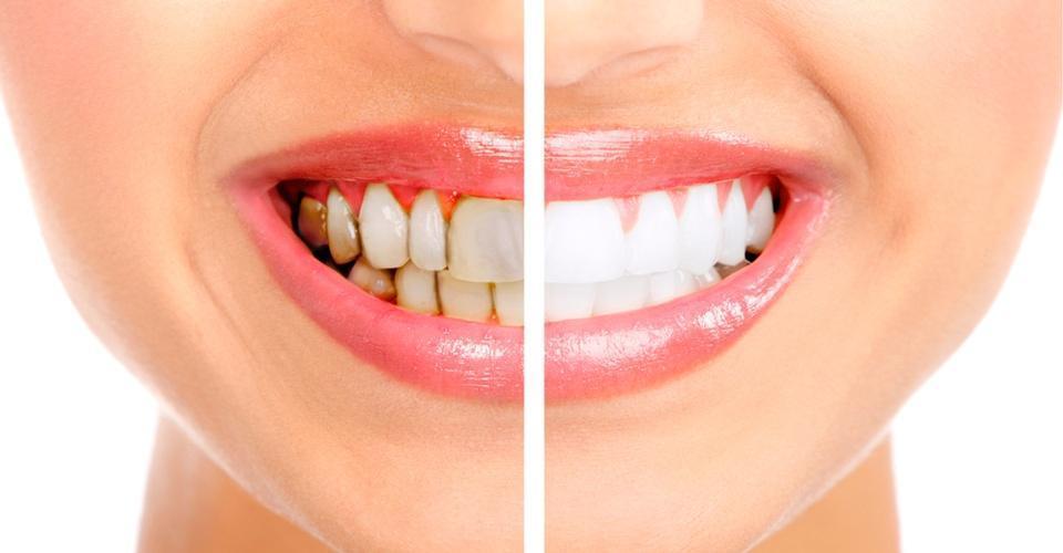 Rehabilitació Oral | Centre Dental Cise | Dentistes de confiança a Figueres