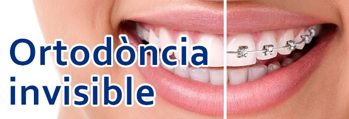 Centre Dental Cise - Figueres | Ortodòncia Invisible