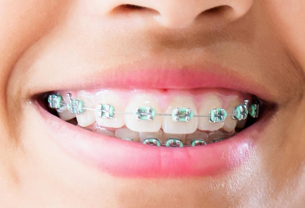 Ortodoncia en Figueres