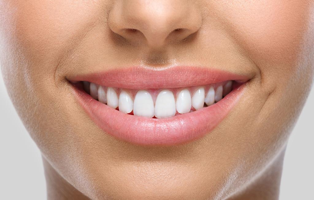 Estética dental a Figueres